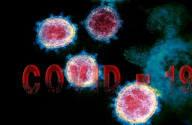Medidas de cuidado psicológico de equipos que trabajan en salud en el contexto de la pandemia de Covid-19 en Chile